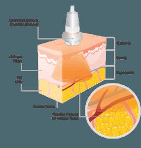 cavitation ellectrode