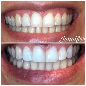 Teeth Whitening Vancouver Wa